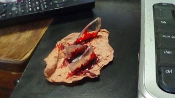 Broken Glass Wound